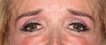 Lado izquierdo de la cara de Kim Richards Transpuesta